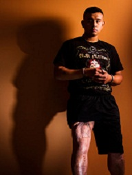 Corporal Isais Hernandez with his healing thigh